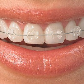 braces-cropped-2-1 ADULT TREATMENT