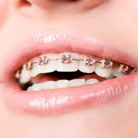 braces-cropped EARLY TREATMENT