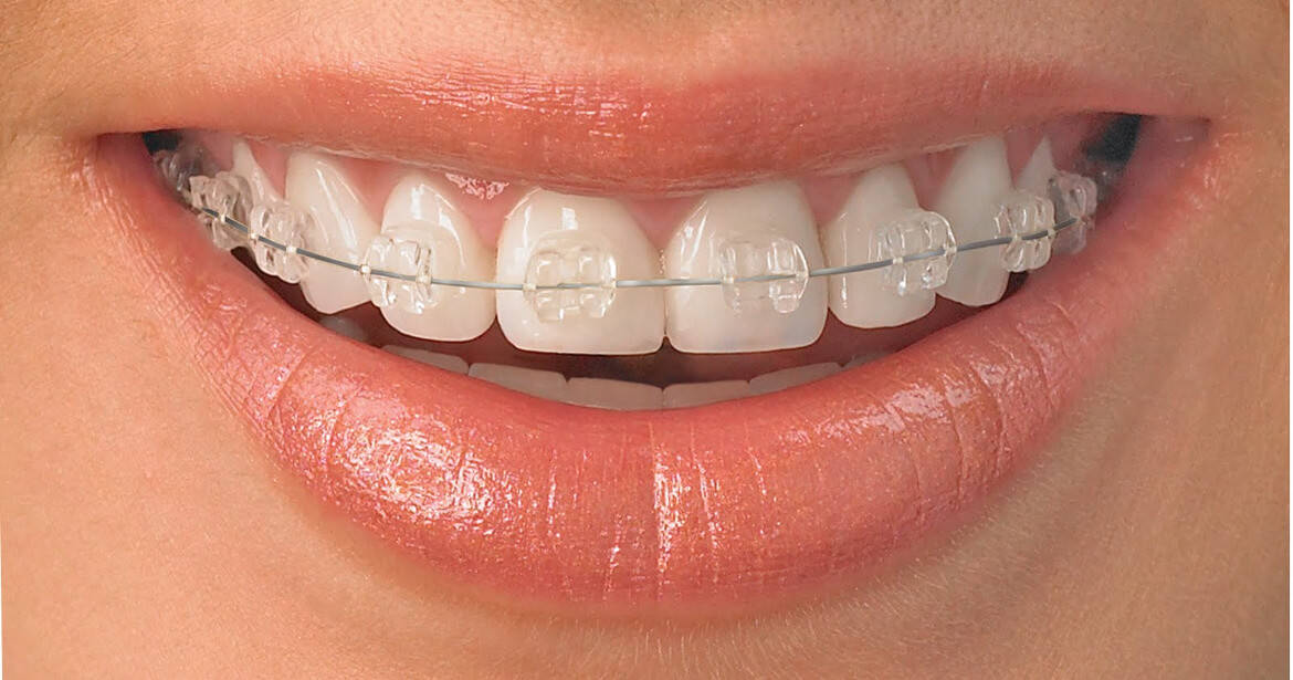 braces-scaled TRADITIONAL BRACES