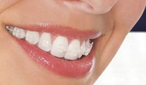 braces1.2 TRADITIONAL BRACES