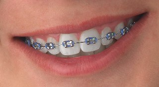 braces2 TRADITIONAL BRACES