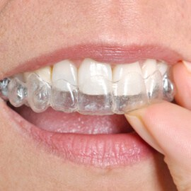 clear-aligners-cropped TRADITIONAL BRACES