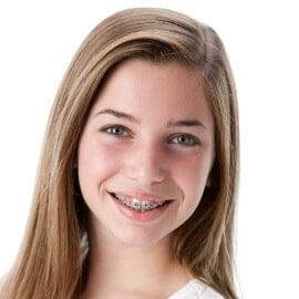 teenage-reduced TRADITIONAL BRACES