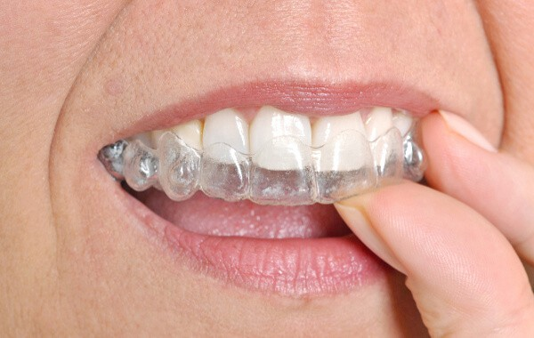 aligners-600x380 Clear Aligners